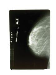Mammograms.