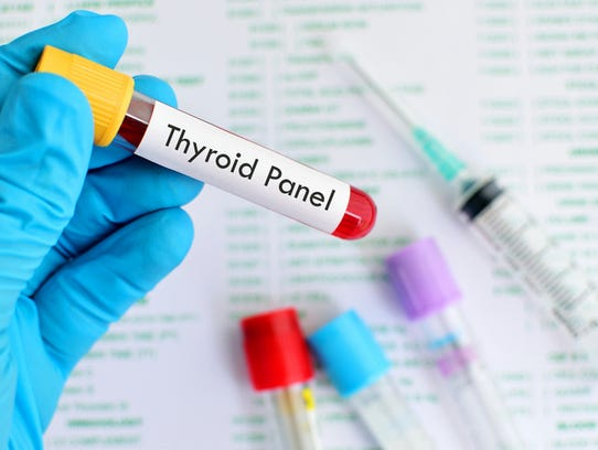 Blood sample for thyroid panel test