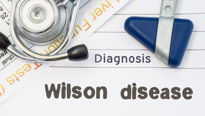 Wilson's disease is a rare genetic disorder in which copper accumulates in the body.
