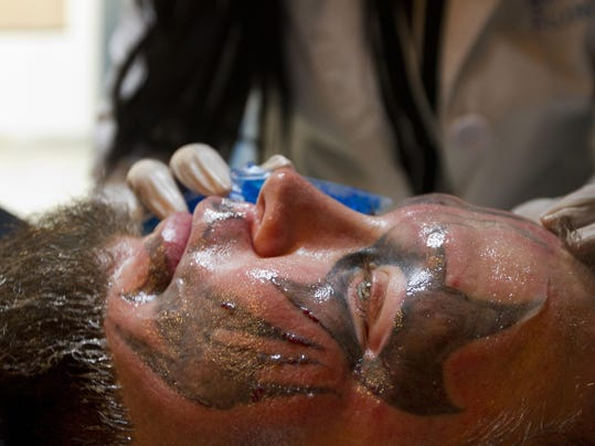Tattoo removal leaves emotional physical mark for New tattoo removal