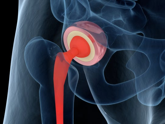 Illustration of the hip replacement.