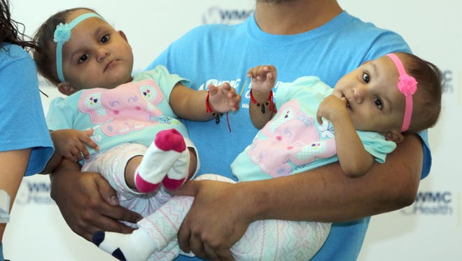 Abel Camacho holds his daughters Bellanie, left, and Ballanie, at Maria Fareri Children's Hospital March 24, 2017. Following a 21-hour surgery to separate the children, who were joined at the base of their spines, the twins were to be released from the hospital.