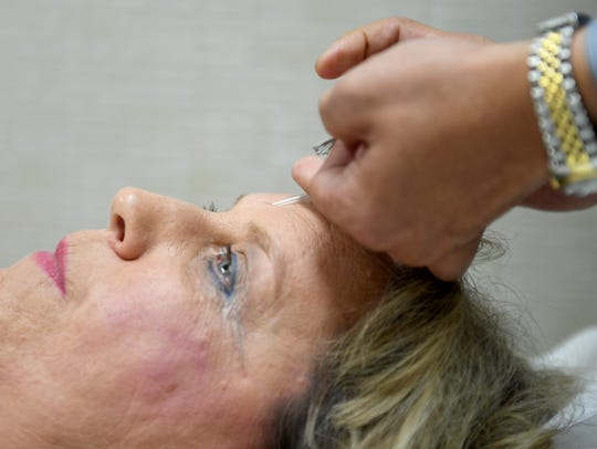 Sharon Greathouse receives acupuncture for her fibromyalgia