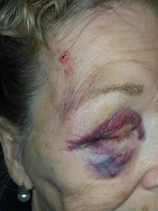 Family says Mesa grandma assaulted by officers
