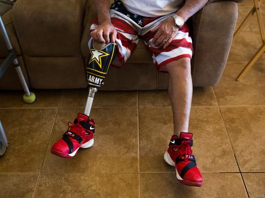Curt Robidoux explains how he lost his leg on Thursday,
