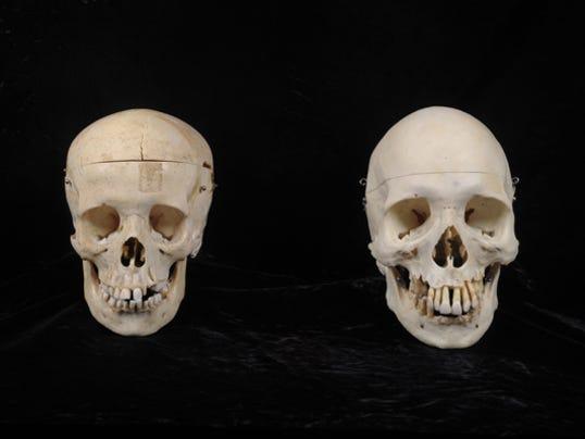Human skulls donated