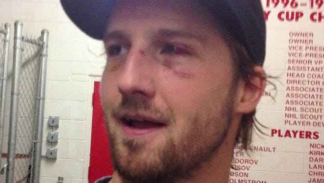Detroit Red Wings forward Darren Helm has a broken nose, gashed cheek and bloody red eye, but he won't be out long.