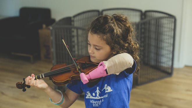 Neriah Rhodes, 5, is missing her left hand. She can now learn to play the violin thanks to a violin maker in Gainesville, her local violin teacher -- and an engineering student at LeTourneau University who created a device that allows her to hold her bow.