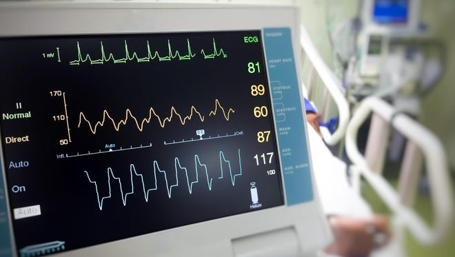 An EKG reading can tell if a person has had a heart attack.