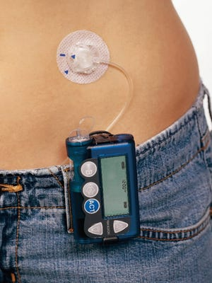 An insulin pump, like this one, allows young people to live more normal lives by giving themselves insulin discreetly in public.