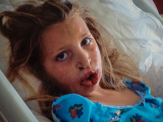 Amanda Bartlett is shown in this family photo at age 8 after a major surgery to repair parts of her cleft palate at the University of Vermont Medical Center in Burlington.