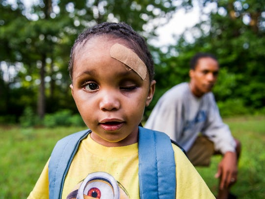 Zachaeus Waters, 3, is photographed with his father, Daquan, outside their home in Fletcher, North Carolina on July 16, 2016. Zachaeus was found clinging to life beside his fatally wounded and pregnant mother, Candace Pickens, at Ira B. Jones Park in Asheville on May 11, 2016. Both were shot in the cheek.