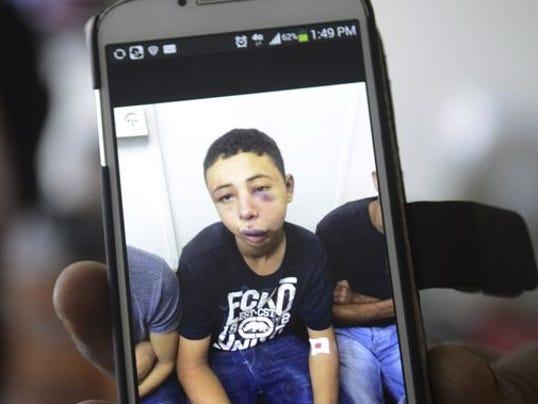 1404643821000-AP-Mideast-Israel-Palestinians