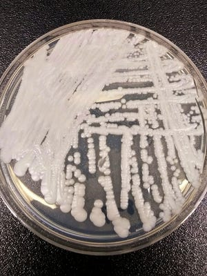"A strain of Candida auris, a deadly ""superbug"" fungus that is hard to spot and kill, is shown in a petri dish."