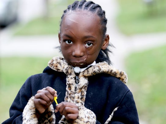 In November I met Zainabou Drame, 7, who is still recovering