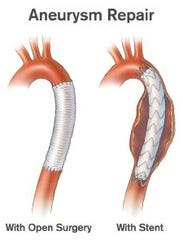 An abdominal aortic aneurysm typically occurs low in