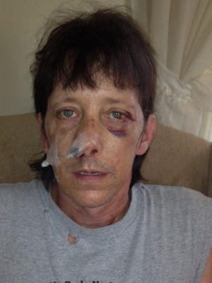 Pat Mahaney, 45, was jumped and beaten by a group of Ohio teens in an Aug. 11, 2012, attack.