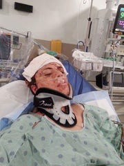 Autumn Lopez, 31, is recovering in Eskenazi Hospital after being struck with an ax multiple times early Friday. A warrant for the arrest of her ex-boyfriend has been issued in connection to the attack.