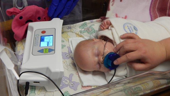 A baby receives pacifier activated treatment in the neonatal intensive care unit at Ministry Saint Joseph's Children's Hospital. (The child pictured was not born with a drug addiction.)