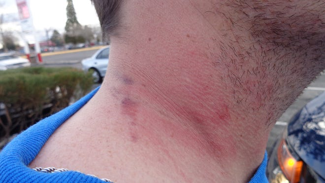 Photo of Justin Fleming's neck taken by Nevada Highway Patrol on March 24, 2015.