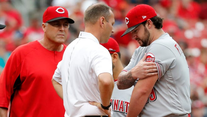 Cincinnati Reds starting pitcher Brandon Finnegan, right, rubs his arm as he talks to a trainer and Reds manager Bryan Price, left, watches during the fourth inning of a baseball game against the St. Louis Cardinals, Monday, June 26, 2017, in St. Louis. Finnegan left the game. (AP Photo/Jeff Roberson)