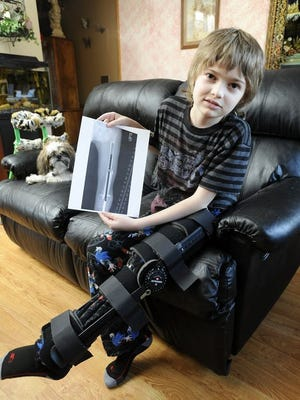 Austin Snyder, 12, lost his battled with cancer Monday morning.