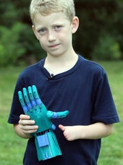 Luke Dennison, 8, of Falmouth, was born without fingers