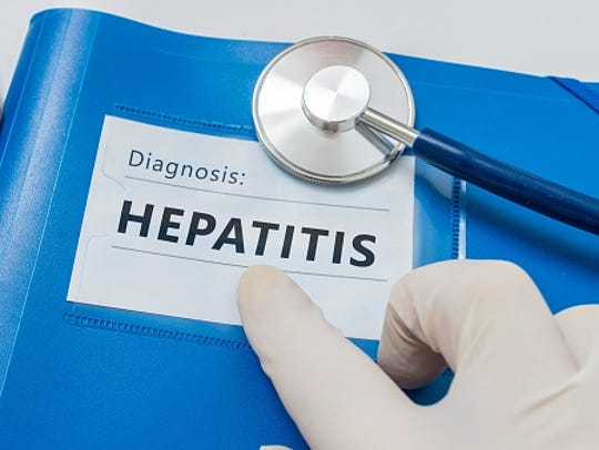 Viral hepatitis is the most common cause of liver disease