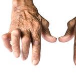 Managing the pain: Know your type of arthritis