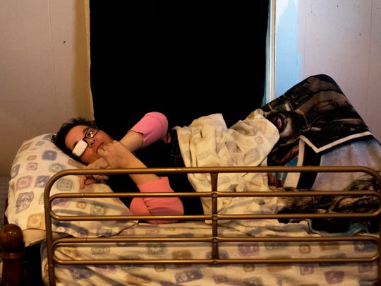 Cody Goodrich waits for her mother Lorie Foltz to help her out of bed on Friday, February 17, 2017. Goodrich survived being shot in the head by an ex-boyfriend last January. After she once rolled out of bed in her sleep, Foltz put a guardrail on the side of her bed to prevent her from doing so again. In the mornings, Foltz helps Goodrich out of bed and into the wheelchair she uses to get around inside their home.