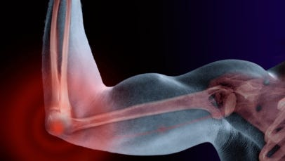 Strong bones help prevent bone density problems.
