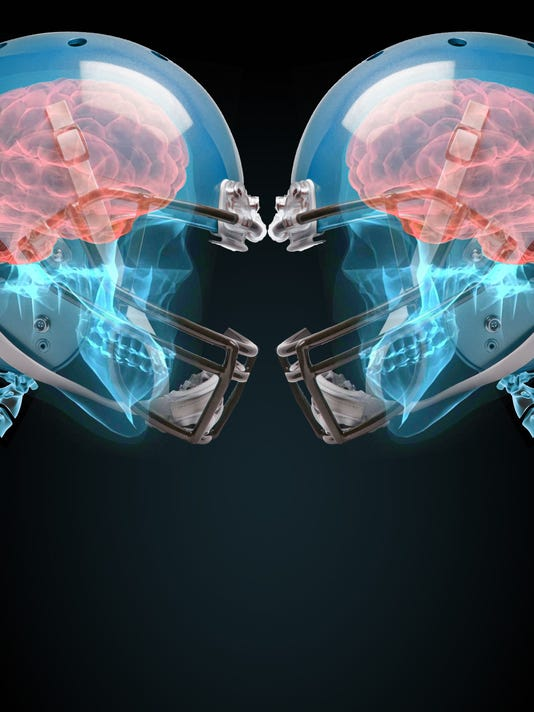 635686963593665130-concussion