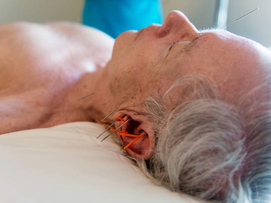 John Evard receives acupuncture treatment for his hearing