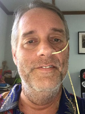 In this Dec. 21 selfie, taken less than two weeks after his surgery for HPV-related base of tongue cancer, columnist Gil Smart can be seen with his feeding tube tucked behind his left ear.