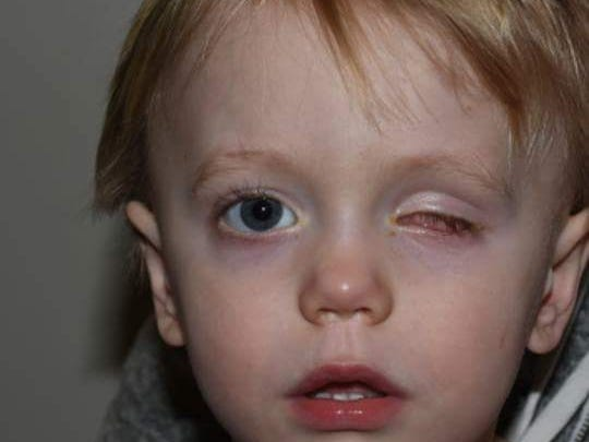 Doctors were forced to remove Niall Hoy's eye after