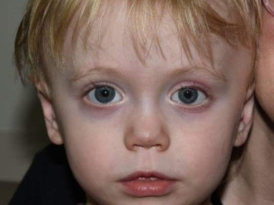 Niall Hoy, 2, of Iowa Falls, wears a prosthetic eye
