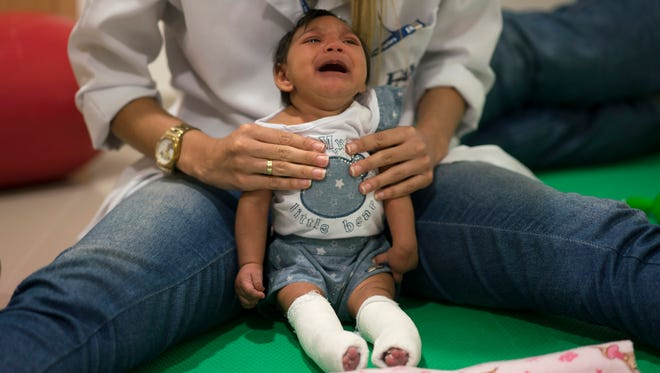 In this Feb. 4, 2016, photo, Luana Vitoria, who was born with microcephaly, cries during a physical therapy session at the Altino Ventura Foundation, a treatment center that provides free health care in Recife, Brazil.