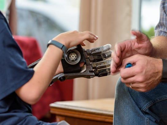 3D Printer Prosthetic Hand