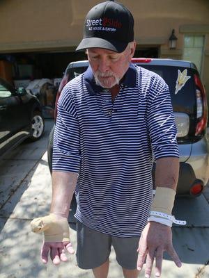 Steve Verschoor, 54, shows his wounds from a rabid bobcat.