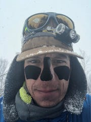 Peter Ripmaster won the Iditarod Trail Invitational 1000 on March 24. He wore tape on his face to prevent frostbite during the month-long race across Alaska.