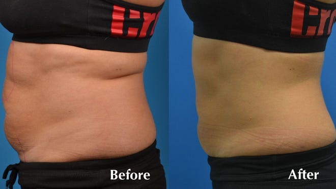 SculpSureis a nonsurgical body contouring laser treatment that permanently melts 25 percent of your fat in just 25 minutes with no surgery and truly no downtime.