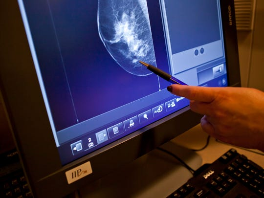 Mammographer Ellen Hinson points out an area of abnormality on an image from a digital mammography unit at McLaren Port Huron hospital.