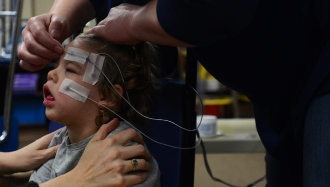 Addy Faulkner, 3, is has electrodes placed on her face in order to use the new EagleEyes technology at Woodland Developmental Center.