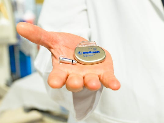 World's smallest pacemaker, Medtronic Micra® Transcatheter Pacing System (TPS)