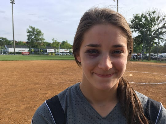 Sammy Mazzagatti sports a black eye she received after being hit by a ball during a drill Tuesday