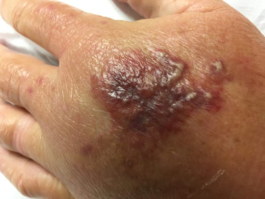 Glenda Sessions' hand after being infected with flesh-eating