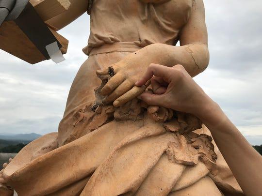 """Kara Warren holds up a reconstructed """"pinky"""" finger"""