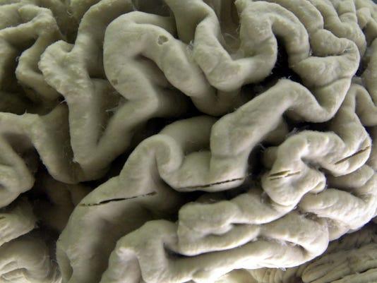 ALZHEIMERS DISEASE BRAIN