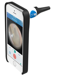 Connected otoscope looks into the ear canal and turns