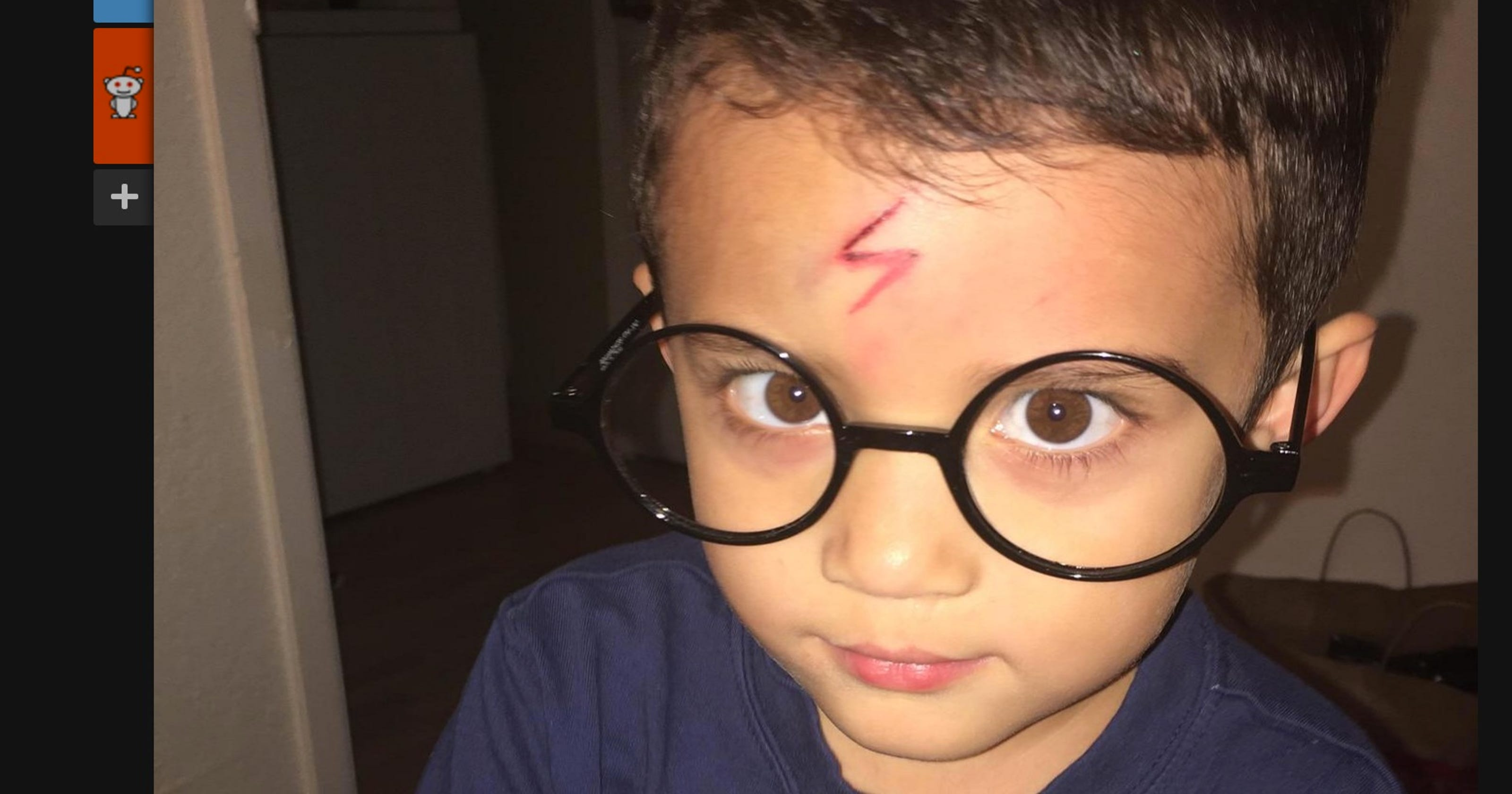 Mom Turns Boys Forehead Cut Into Harry Potter Themed Scar